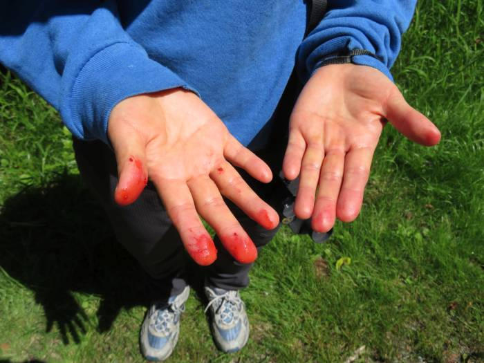 berry stained fingers